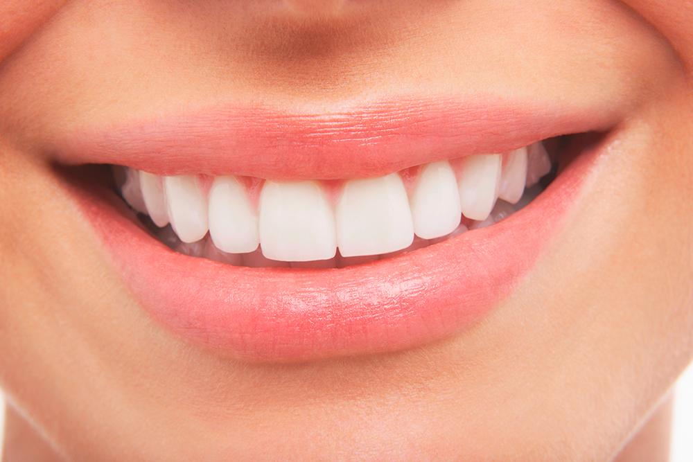 Lächeln mit schönen weissen Zähnen