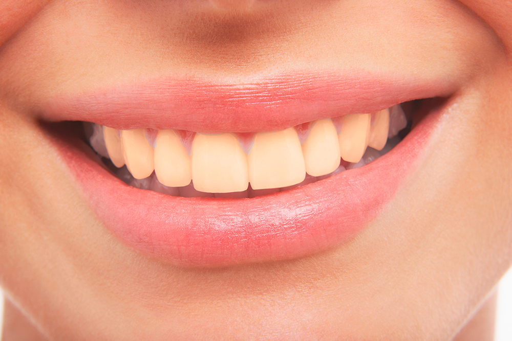 Lächeln mit schönen gelblichen Zähnen
